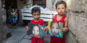 Prince and Charles following cleft lip and palate surgery carried out by doctors trained by Smile Train.